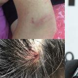 The Eastlight.正式起诉所属社 受伤照片公开:头顶流血,手臂、小腿淤青