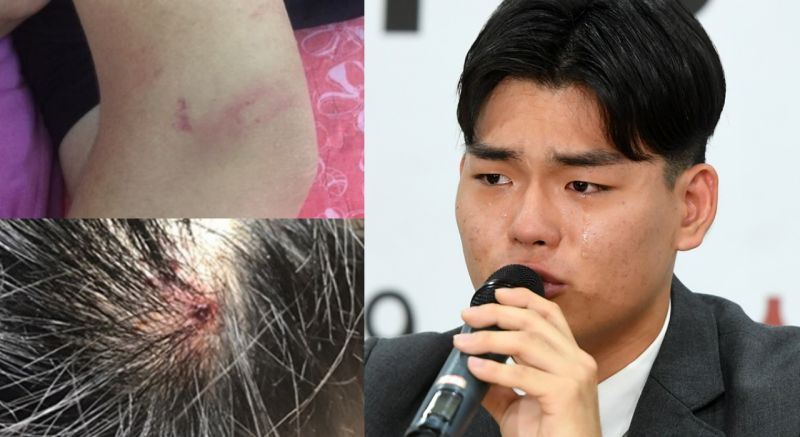 The Eastlight.正式起訴所屬社 受傷照片公開:頭頂流血,手臂、小腿淤青